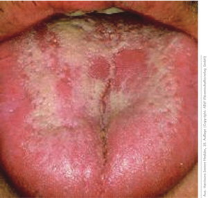 Causes of candidiasis in the mouth