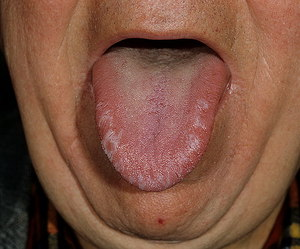 Thrush in the mouth in adults