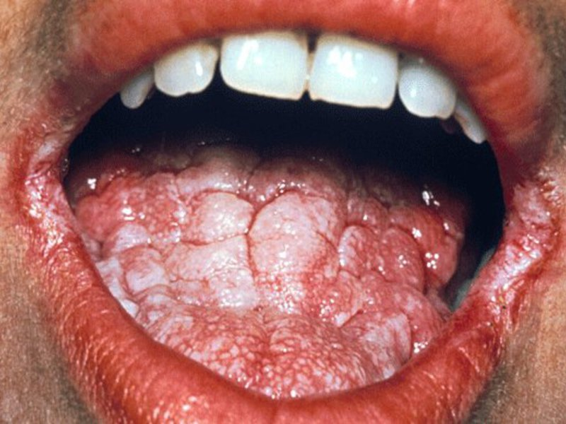 Manifestations of candidiasis in the mouth