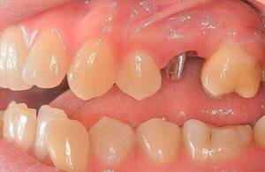The clump tab in the tooth - the installation of the crown