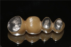 Tabs under the crowns and the installation of dentures on the teeth