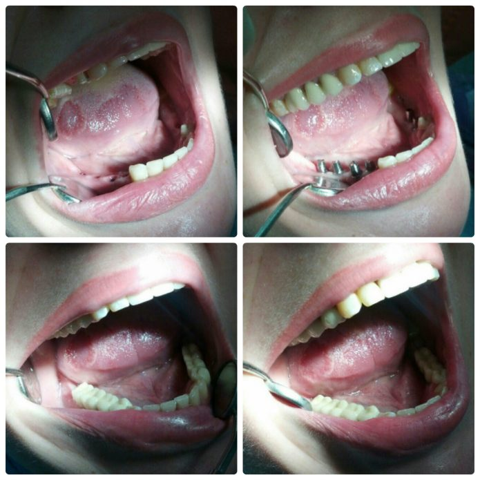 Installation of dentures on chewing teeth