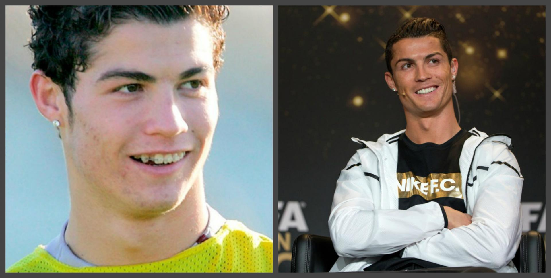 Cristiano Ronaldo - teeth before and after, a selection of ...