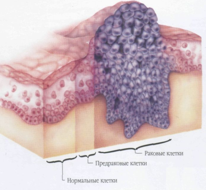 Appearance of oncology