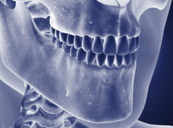 Osteomyelitis of the jaw