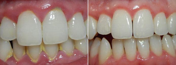 Effect of the procedure