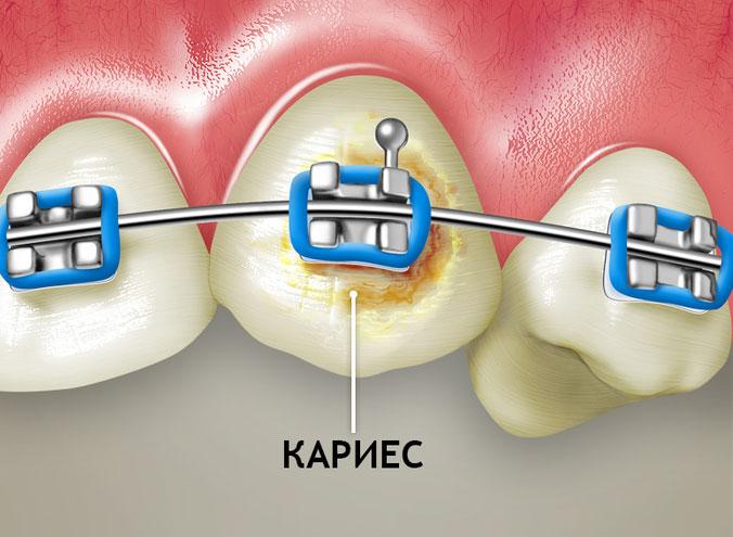 Caries under braces