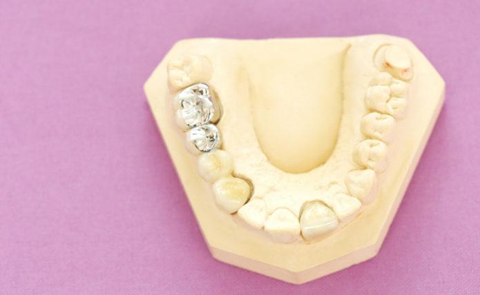 Tooth Tab