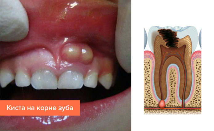 Cyst on the tooth root