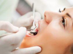 Plazmolifting in dentistry