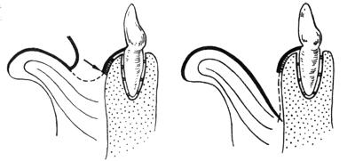 Frenuloplasty bridle