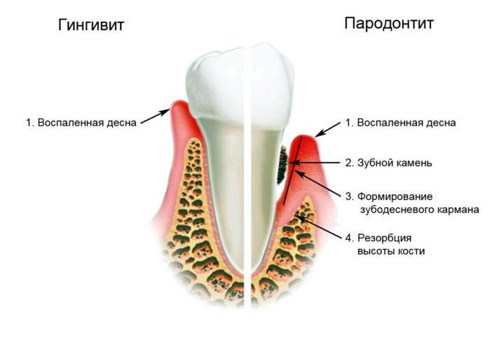 Diseases of the teeth and gums